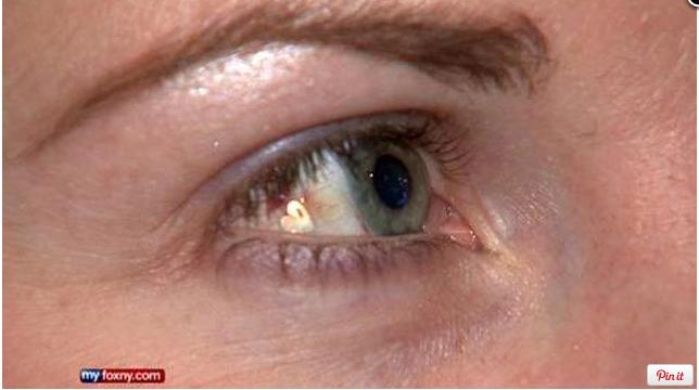 Schmuckimplantate im Auge
